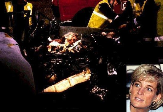 princess diana crash injuries. graphic princess diana crash
