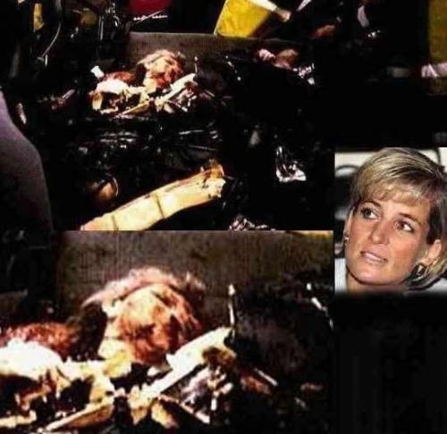Princess Diana Post-Crash Photo — Elliott.